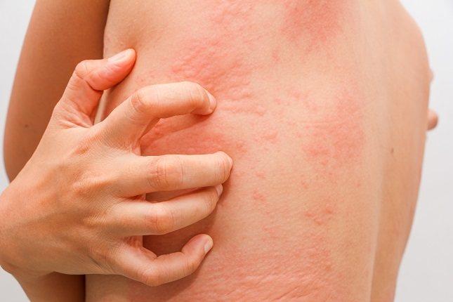 La presión sobre la piel para extraer las larvas suele ser el método más adecuado