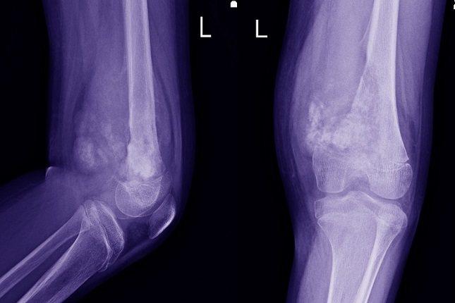 El calcio y la vitamina D son los dos nutrientes más importantes para construir huesos fuertes