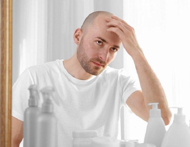 La herencia es la principal causa de pérdida prematura del cabello