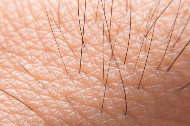 Las hormonas conocidas como andrógenos activan el crecimiento del vello corporal