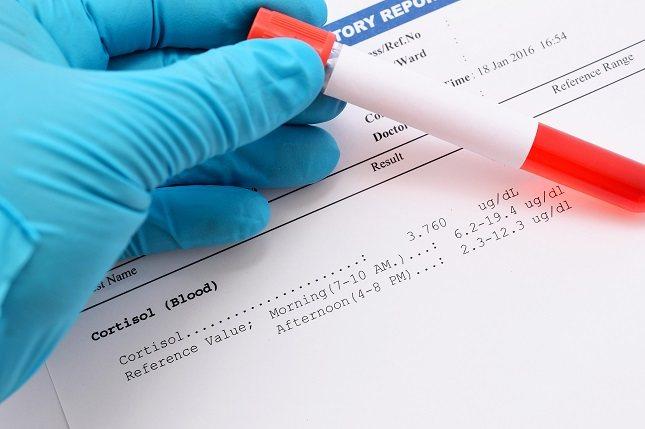 Se deben realizar análisis de sangre para verificar los niveles de cortisol
