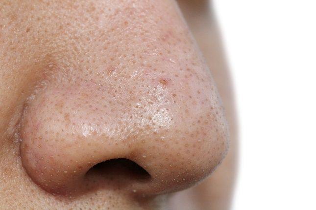 Las espinillas en la nariz es un habitual en muchas personas
