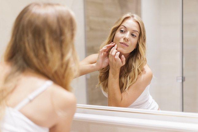 Las causas del acné incluyen la piel grasa