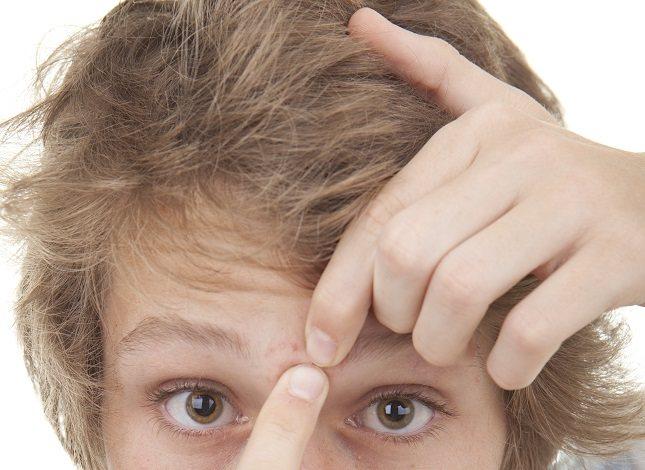 La frente es una de las áreas más comunes para que aparezca el acné