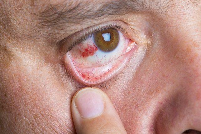 Las manchas rojas suelen aparecer en la parte blanca del ojo