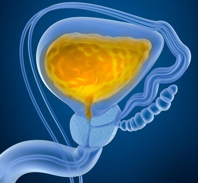 Los cálculos renales pueden producirse por diversos motivos