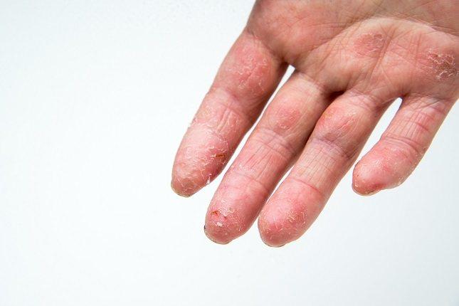 eccema u hongo en los dedos