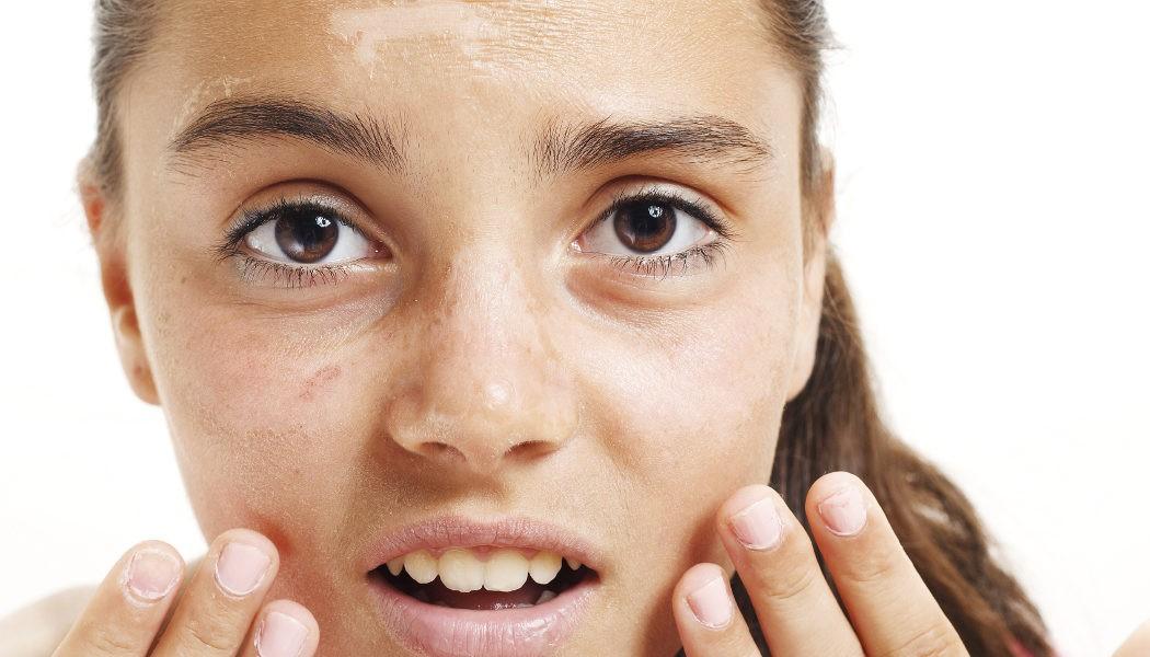 Como quitar la melanina de mi piel