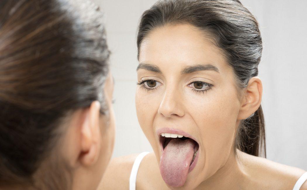 como debo tratar la candidiasis bucal