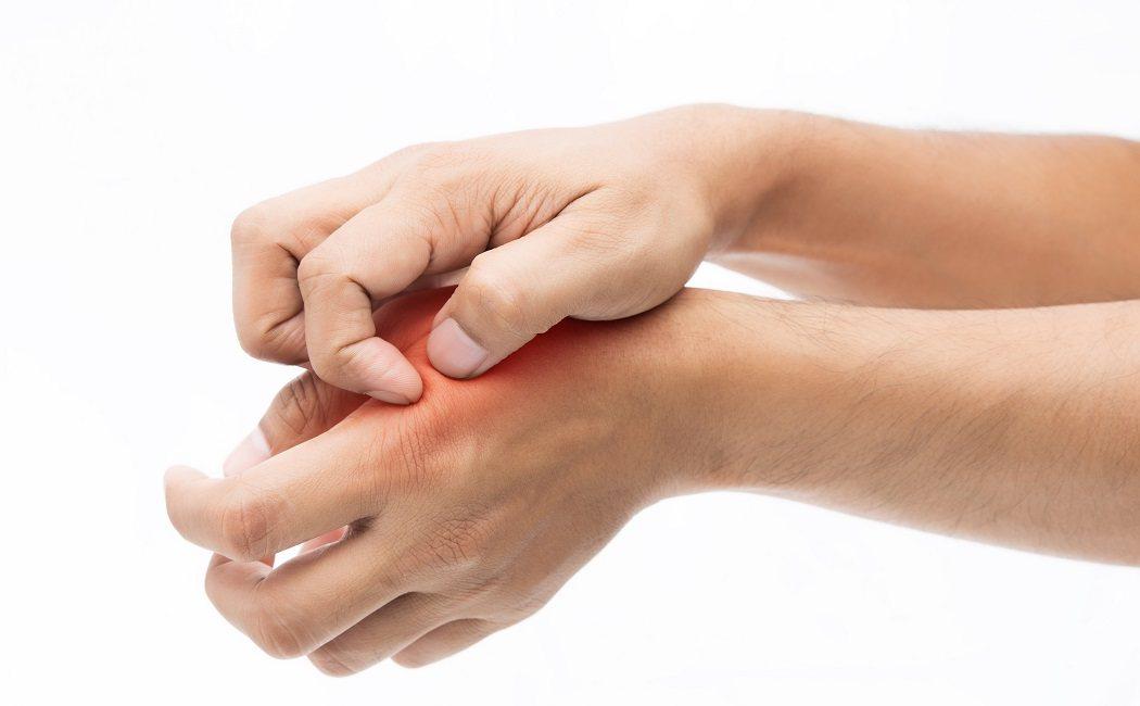 Alergia en las manos por estres
