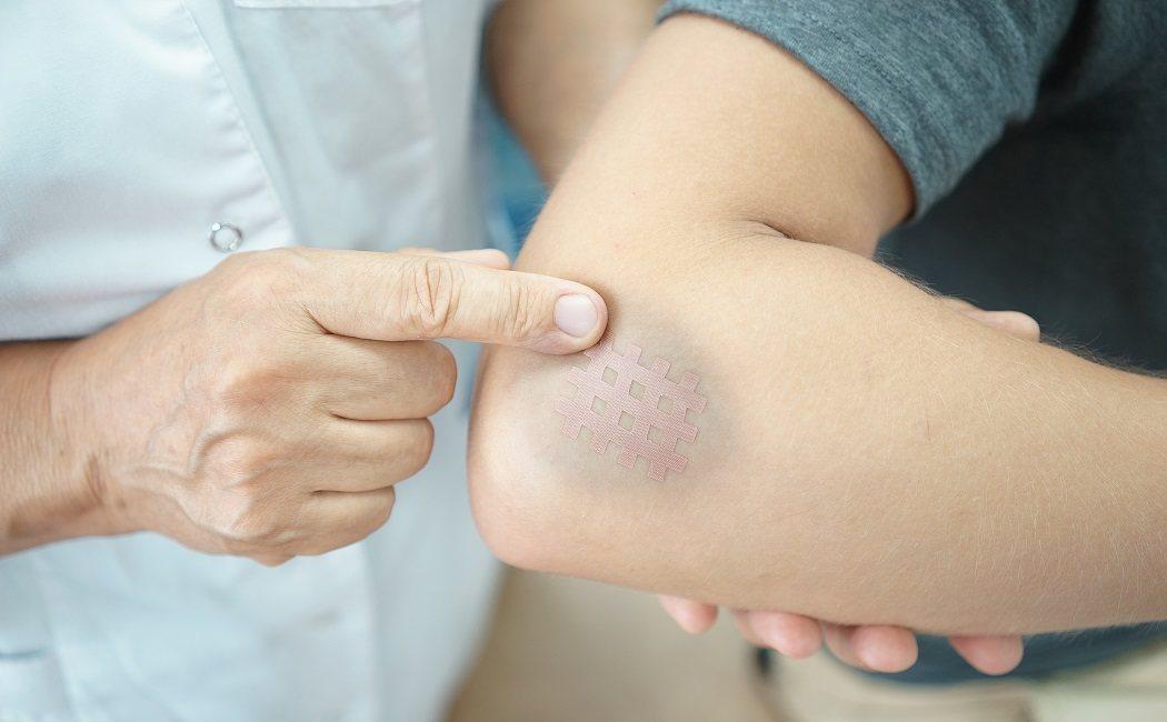 Reducir la hematomas los y Lo para mejor hinchazón