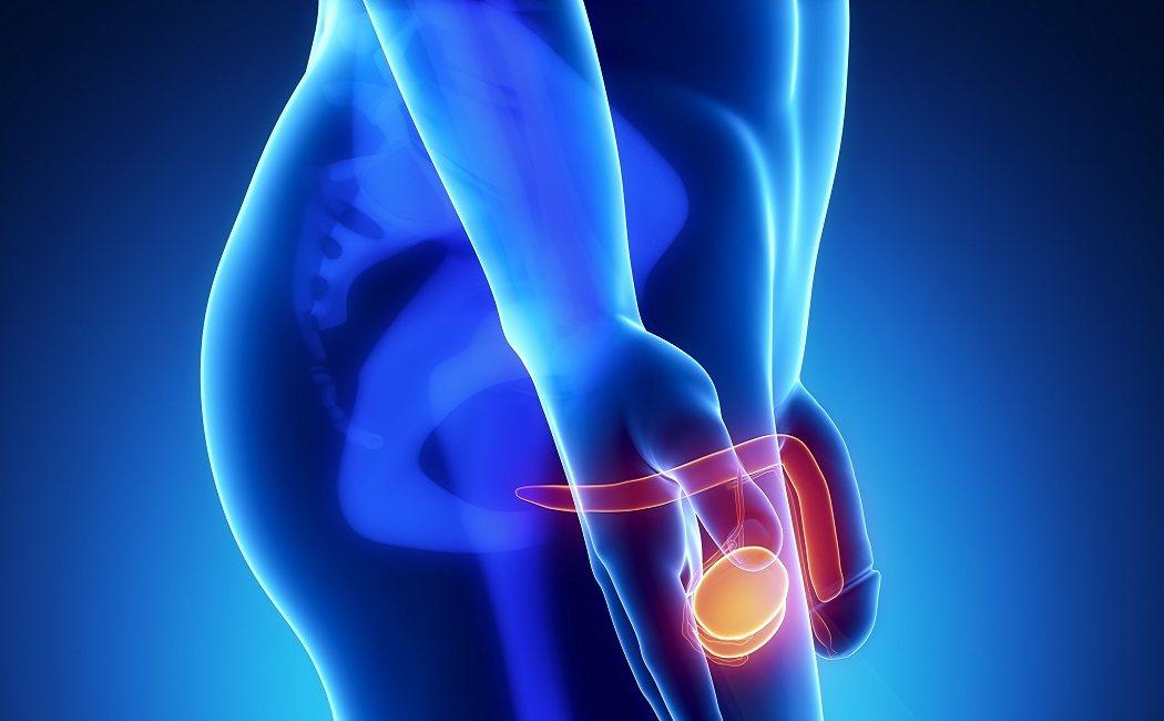 cáncer de próstata y nervio pudendo