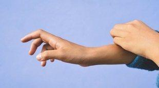 Remedios caseros contra los picores de la dermatitis