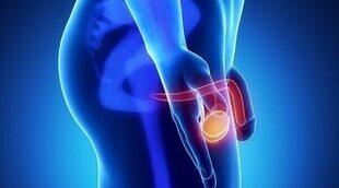 Todo lo que debes saber sobre el cáncer de testículo