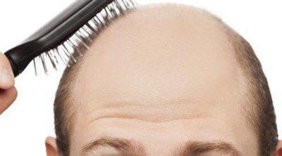 Minoxidil contra la alopecia, ¿es efectivo?