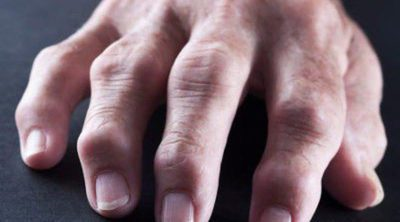 ¿Es lo mismo la artrosis que la artritis?