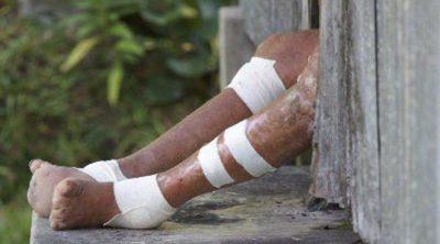 Día Mundial contra la Lepra: ¿Cuáles son los síntomas de esta enfermedad?