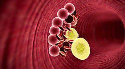¿Provoca la menopausia un aumento de colesterol?