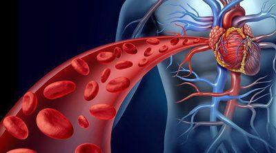 Qué es una angioplastia y cuándo se realiza