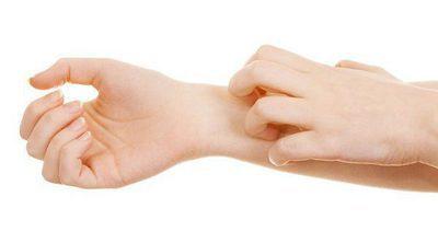 Consecuencias de rascar la piel cuando pica