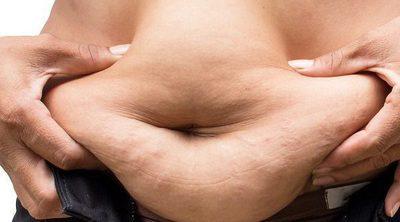 ¿La obesidad está ligada con la muerte prematura?