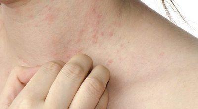 Causas de las manchas blancas en la piel