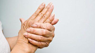 Consejos para mejorar tu calidad de vida si tienes artrosis