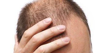 ¿Se puede prevenir la alopecia?