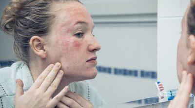 Cómo saber si padeces linfangitis