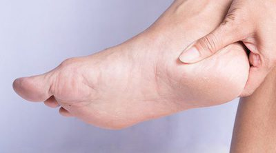Cuáles son los síntomas de un espolón en el pie o espolón calcáneo