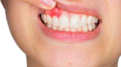 Qué es la melanosis gingival o encías oscuras