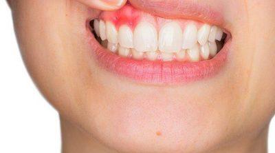 Factores que perjudican la salud de las encías