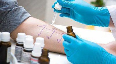 Prick test: pruebas cutáneas de alergia