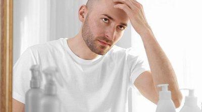 3 consejos para evitar que se te caiga el pelo