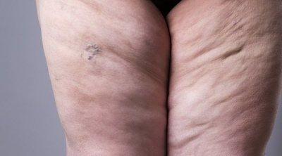 Lipedema: el síndrome de la grasa dolorosa