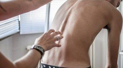 5 cosas que no sabías de las personas que sufren escoliosis