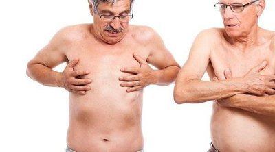 Qué es la ginecomastia