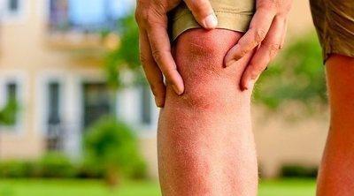 Qué es la artritis psoriásica