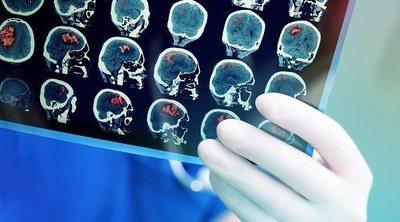Qué es la isquemia cerebral