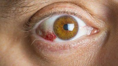 Síntomas y tratamiento de la queratitis