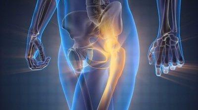¿Tienes osteoporosis? Señales que te advierten