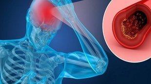 Qué es la hemorragia subaracnoidea
