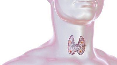 Qué es y cómo afecta el hipoparatiroidismo