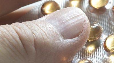 La vitamina B, ¿ayuda contra la ansiedad?