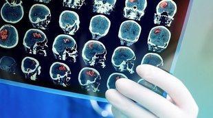 Síntomas sutiles que indican que tienes un tumor cerebral