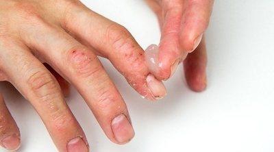 Por qué salen bultos rojos en los dedos