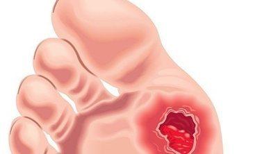 Las úlceras vasculares: qué son, a qué se deben y cómo podemos prevenirlas