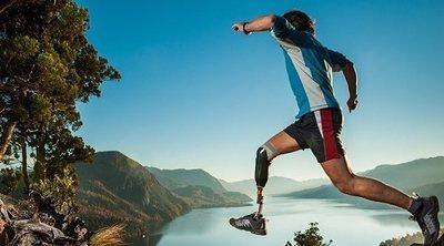 Qué son las prótesis y para qué sirven