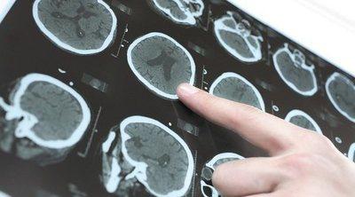 Ejercicios de recuperación de lesiones cerebrales