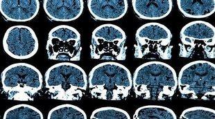 Síntomas de un tumor en el cerebelo